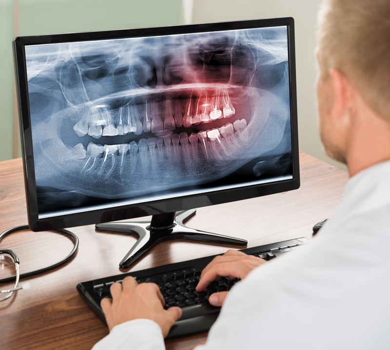 Dental Digital X-Ray on Monitor